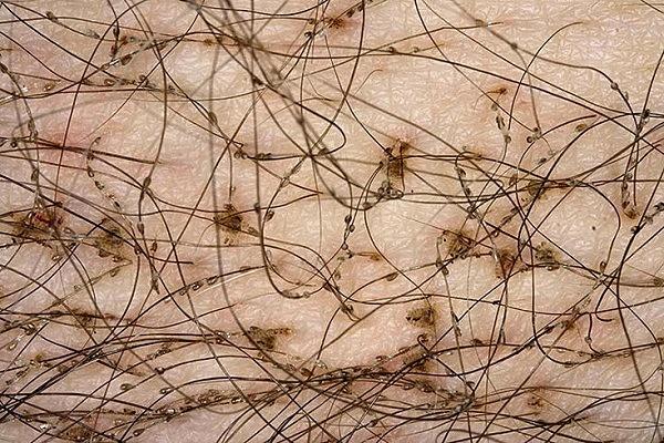 Лобковые вши и их гниды